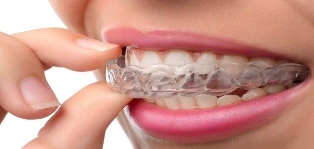 الإجراءات الأكثر شيوعاً لتجميل الابتسامة